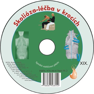 CD Skolióza - léčba v krocích