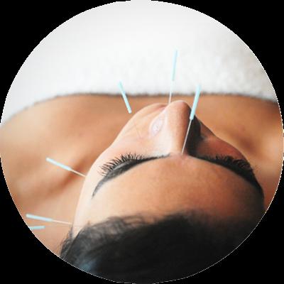 Akupunkturní jehly